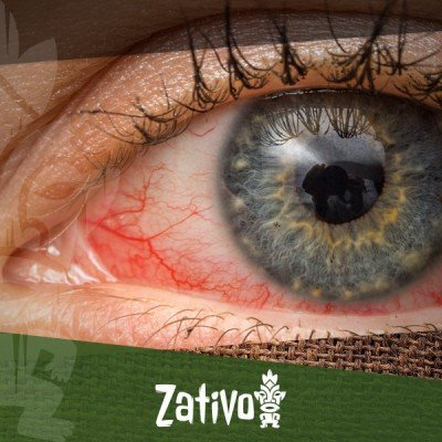 Red Eyes And Cannabis: Why, And What To Do About It